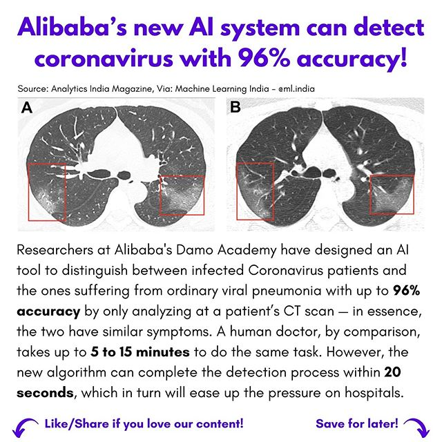Alibaba's  new AI System can detect coronavirus with 96% accuracy -WINX Technologies
